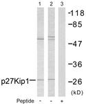 B7176-1 - CDKN1B / KIP1