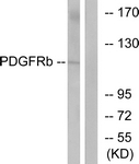 B7194-1 - CD140b / PDGFRB