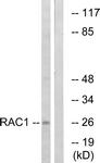 B7205-1 - RAC1