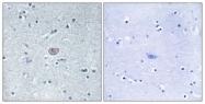 B7254-1 - CD309 / VEGFR-2 / Flk-1