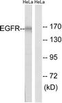 B8024-1 - EGFR / ERBB1