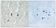 B8062-1 - Serum response factor (SRF)