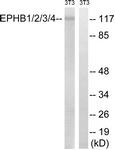 B8098-1 - EPHB1