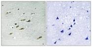 B8118-1 - Tyrosine-protein kinase JAK2