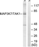 B8132-1 - TAK1 / MAP3K7