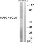 B8134-1 - MAP3K8 / TPL-2