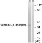 B8205-1 - Vitamin D3 receptor / NR1I1