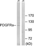 B8210-1 - CD140a / PDGFRA