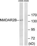 B8257-1 - NMDAR2B