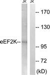 B8340-1 - EEF-2 kinase