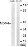 B8369-1 - MDM4