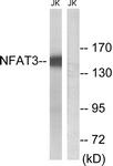 B8385-1 - NFATc4 / NFAT3