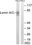 B8464-1 - Lamin-A/C (LMNA)