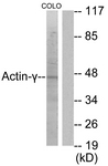 C0123-1 - gamma 2 smooth muscle Actin / ACTG2