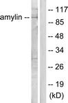 C0125-1 - Amylin / IAPP