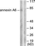 C0126-1 - Annexin A6 / ANXA6
