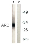 C0130-1 - NOL3 / ARC