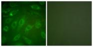 C0154-1 - Collagen type I alpha 2 chain