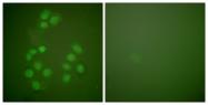 C0161-1 - CREB-binding protein
