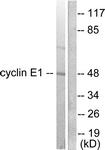 C0167-1 - Cyclin E1