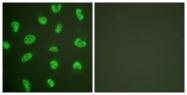 C0174-1 - DNA-PKcs / PRKDC / XRCC7
