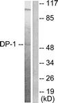 C0175-1 - TFDP1