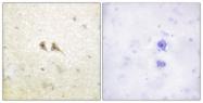 C0189-1 - CD178 / Fas Ligand