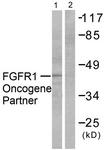 C0190-1 - FGFR1OP