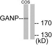 C0204-1 - MCM3AP