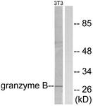 C0215-1 - Granzyme B (GZMB)