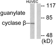 C0219-1 - Guanylate cyclase soluble GUCY1B3
