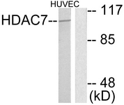 C0227-1 - HDAC7