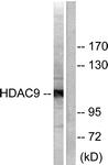 C0228-1 - HDAC9