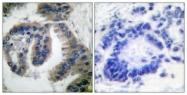 C0232-1 - DNAJB1 / HSP40