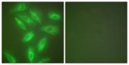 C0243-1 - Cytokeratin 18