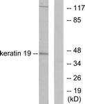 C0244-1 - Cytokeratin 19