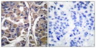 C0245-1 - Cytokeratin 20