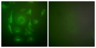 C0247-1 - Cytokeratin 7
