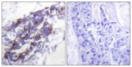 C0248-1 - Cytokeratin 8