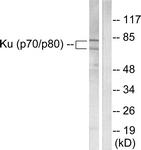 C0252-1 - Ku70/80 (XRCC6/5)