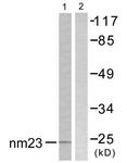 C0278-1 - NDP kinase B / NME2