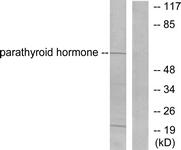 C0293-1 - Parathyroid hormone / PTH