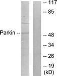C0294-1 - PARK2 / Parkin