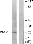 C0299-1 - PDGFB