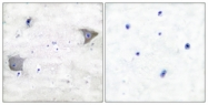 C0300-1 - CD140a / PDGFRA