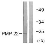 C0306-1 - PMP22