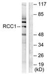C0314-1 - RCBTB1