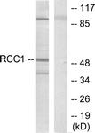C0315-1 - RAR-beta / RARB