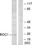 C0317-1 - RIT1
