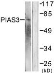 C0363-1 - PIAS3